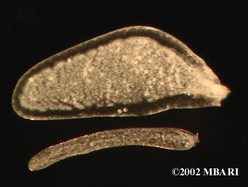 <em>Haploops lodo</em> <br> female gill and oostegite