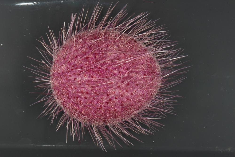 Microscopic view of a beautiful sea urchin we collected yesterday in a push core. It is likely a new species in the genus Pilematechinus and is about 10 cm long.