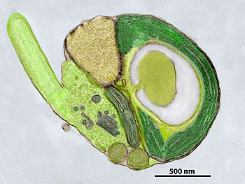 This transmission electron microscope image shows a cross section through a single Micromonas alga. In this