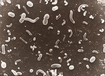 Thousands of different types of microbes inhabit every cubic centimeter of seawater. Although a few types of microbes been studied in detail, DNA studies will help scientists learn about the many species that have yet to be identified. Image: Ed DeLong (c) 2000 MBARI